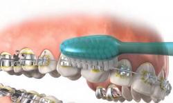 tártaro dentes remover