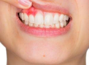 Aprenda mais sobre abscesso dentário