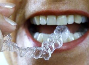 Saiba mais sobre aparelho dentário transparente