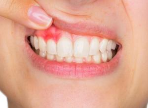 boca inchada dente