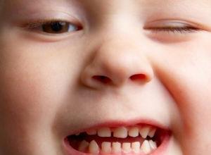 bruxismo infantil tratamento