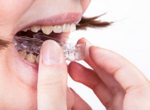 Bruxismo tratamento contra dores e desgaste dos dentes