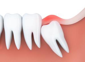 Como funciona a cirurgia do dente siso?
