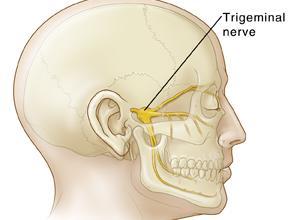 cirurgia neuralgia do trigêmeo