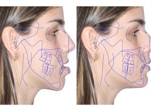 cirurgia ortognática mordida aberta