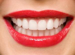 como clarear os dentes em casa