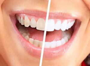 Como deixar os dentes branco