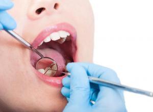 como tirar a resina do dente