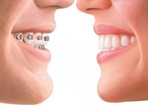 como tirar aparelho dos dentes