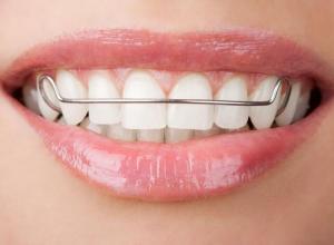 Saiba mais sobre convênio odontológico que cobre aparelho