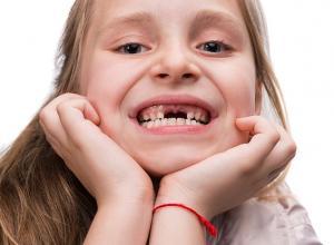 dente arrancado