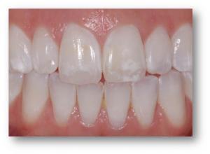 dente com mancha branca
