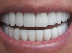 dente quero