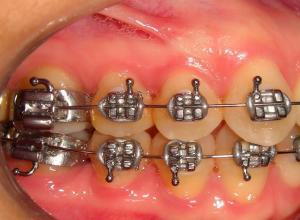 dentes amarelados com aparelho