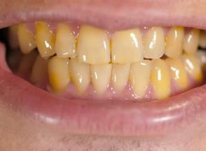 dentes com manchas escuras