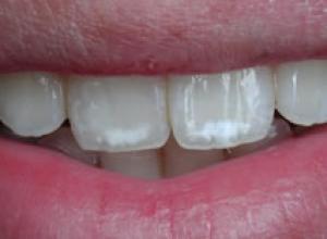 dentes manchados de amarelo
