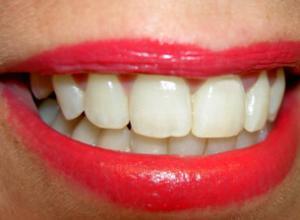 dentes manchados de branco