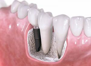 Saiba mais sobre enxerto periodontal