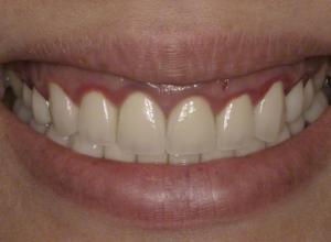 Saúde bucal: gengiva escura