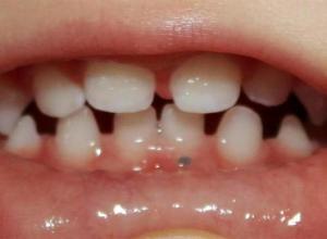 gengiva escura ao redor do dente