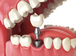 Por que colocar implante dentário