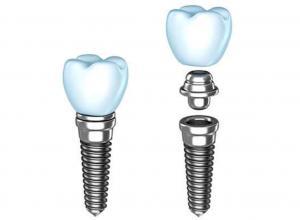 implante odontológico preço