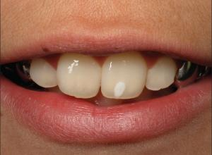 mancha branca no dente após clareamento
