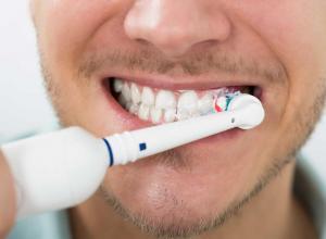 Mancha no dente da frente é sinal de cárie?