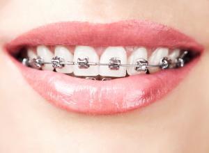 plano odontológico com ortodontia