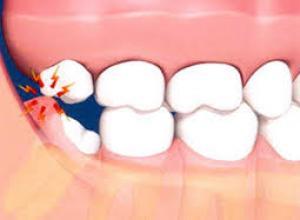 Tudo o que você precisa saber sobre o siso dente