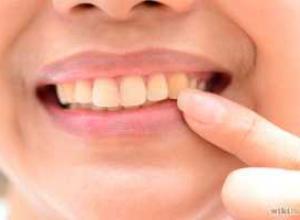 tirar amarelado do dente