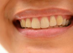 Como tirar amarelo dos dentes definitivamente