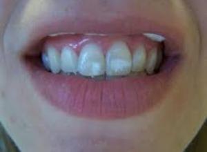 Tirar mancha branca do dente é possível?