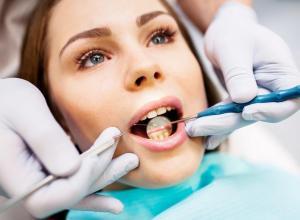 tratamento para tártaro nos dentes