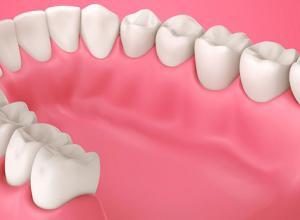 Tratamento periodontal: quando fazer?