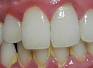 tratamento periodontite avançada