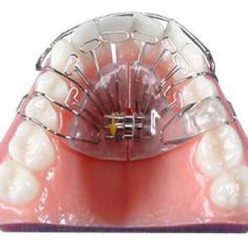 aparelho dentista