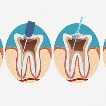 canal do dente doendo