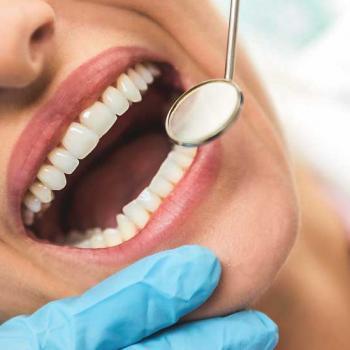 cárie dental