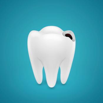 cáries nos dentes como tirar