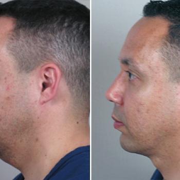 cirurgia do maxilar antes e depois