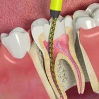 como evitar dor de dente