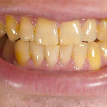 como tirar placa bacteriana nos dentes