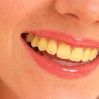 como tratar dentes amarelados