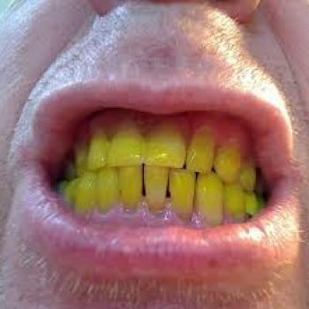 dentes amarelados como clarear