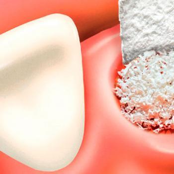 enxerto ósseo dente