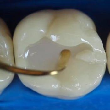 restauração de dente